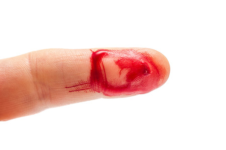 Flesh wound with blood on male finger closeup