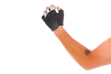 Cyclist arm in glove with bruise  on white background