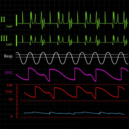 physiologic: Physiologic monitor, abstract background illustration