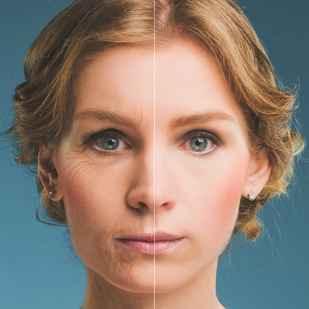 Portrait of a woman before and after botox Stok Fotoğraf
