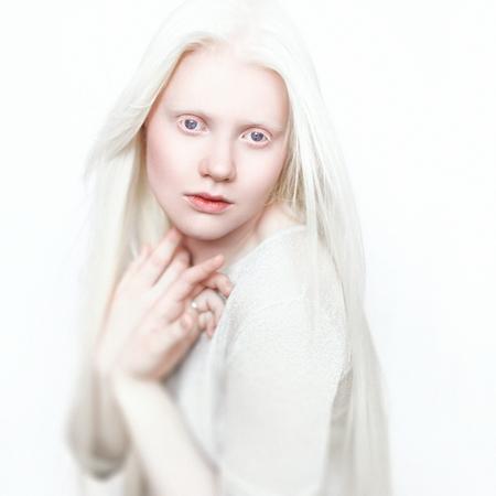 白い肌、自然の唇と白い毛を持つアルビノの少女。明るい背景に写真の顔。頭の肖像画。ブロンドの女の子 写真素材 - 88542076