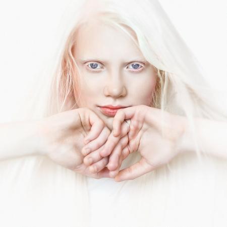 Albino-Mädchen mit weißer Haut, natürlichen Lippen und weißem Haar. Foto Gesicht auf einem hellen Hintergrund. Porträt des Kopfes. Blondes Mädchen