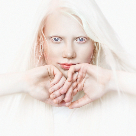 Albino girl with white skin, natural lips and white hair. Photo face on a light background. Portrait of the head. Blonde girl Archivio Fotografico