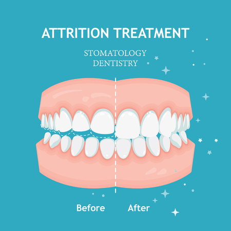 Attrition treatment vector. Stomatology dentistry concept.