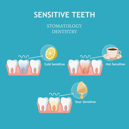 Gevoelige tanden. Stomatologie tandheelkunde vector concept