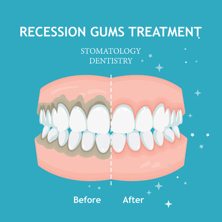 Periodontitis vector. Recession gums treatment. Stomatology dentistry concept 版權商用圖片 - 110519550