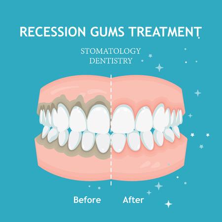 Wektor zapalenia przyzębia. Leczenie recesji dziąseł. Koncepcja stomatologii stomatologii Ilustracje wektorowe