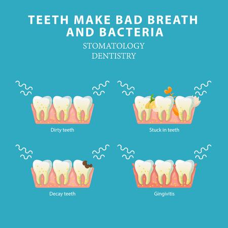 Nieświeży oddech i bakterie. Koncepcja wektor stomatologia stomatologia