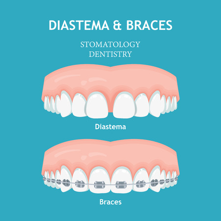 Diastema Braces vector. Stomatology dentistry vector concept 版權商用圖片 - 110519552
