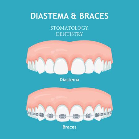 Diastema-Klammern-Vektor. Stomatologie-Zahnmedizin-Vektorkonzept