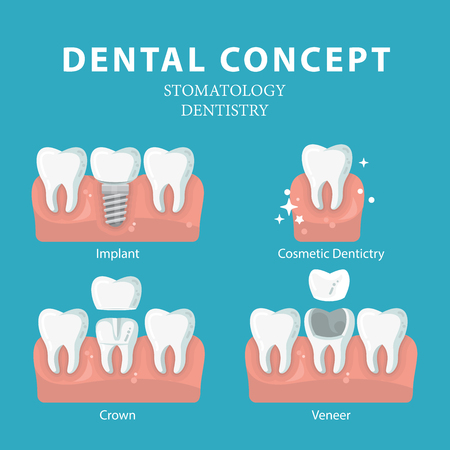 Dental concept. Vector poster. Dentistry and Stomatology.