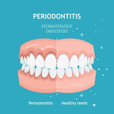 Vecteur de parodontite. Traitement des gencives de récession. Concept de dentisterie stomatologie