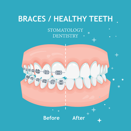 Braces concept. White spots. Stomatology dentistry vector