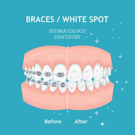 Hosenträger-Konzept. Weiße Flecken. Stomatologie Zahnmedizin Vektor