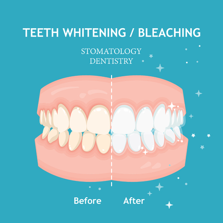Teeth whitening and bleaching concept. Dentistry and stomatology vector