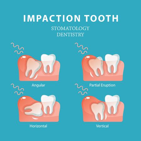 Diente de impactación. Vector de estomatología de odontología Ilustración de vector
