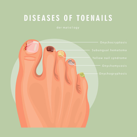 Fungus toenail infection vector medicine poster. Colorful design. Detailed image with text.  イラスト・ベクター素材