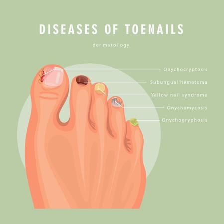 Manifesto della medicina di vettore di infezione dell'unghia del piede del fungo. Disegno colorato. Immagine dettagliata con testo. Vettoriali