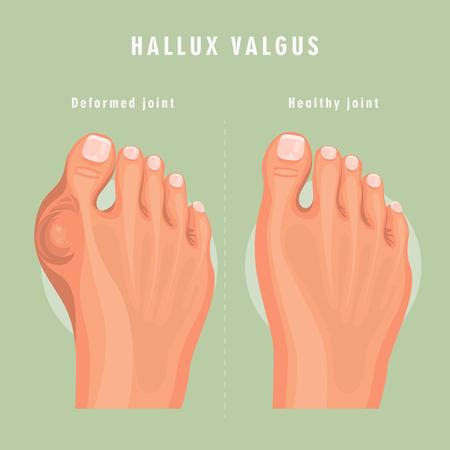 Affiche de médecine vectorielle hallux valgus. Conception colorée. Image détaillée avec texte. Vecteurs