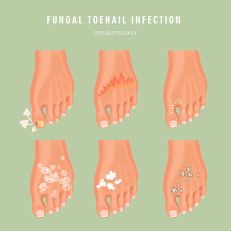 Cartel de medicina de vector de infección por hongos en las uñas. Diseño colorido. Imagen detallada con texto. Ilustración de vector