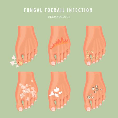 Pilz-Zehennagel-Infektion Vektor-Medizin-Poster. Buntes Design. Detailliertes Bild mit Text. Vektorgrafik