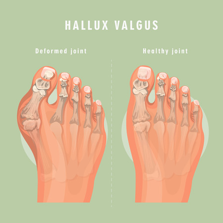 Hallux valgus vector medicine poster. Colorful design. Detailed image with text. Standard-Bild - 115232377