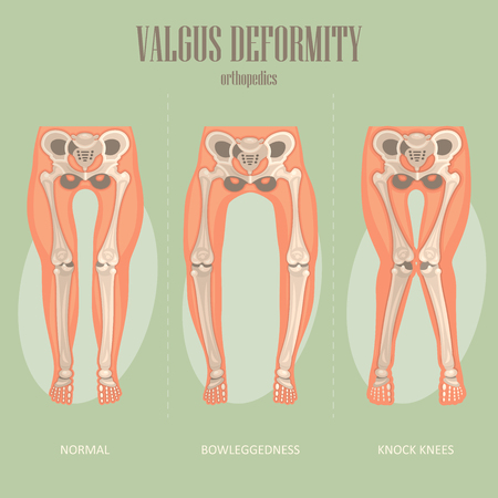 Valgus deformity. Vector medical poster. Prthopedics flyer with normal, bowleggedness and knock knees.