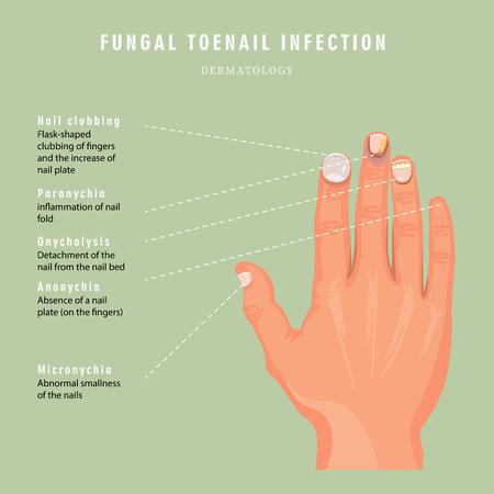 Nail deseases. Nail clubbing, paronychia, onycholusis, anonuchia, micronychia