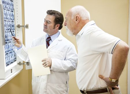 a diagnosis: Doctor explains a CT scan of the spine to his senior patient.