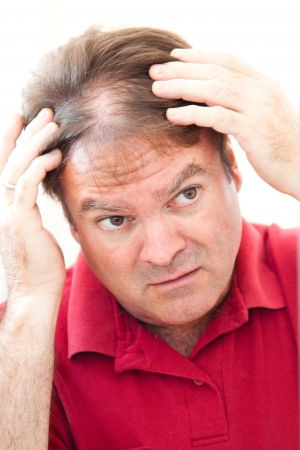 thinning: Man in his forties looking in the mirror worried about thinning hair.   Stock Photo