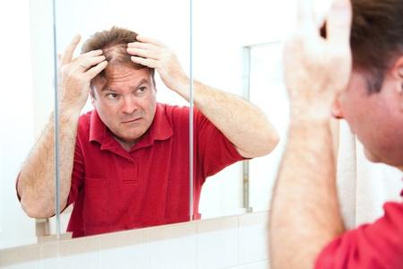 calvicie: Hombre de mediana edad de cheques para el adelgazamiento del cabello en el espejo.