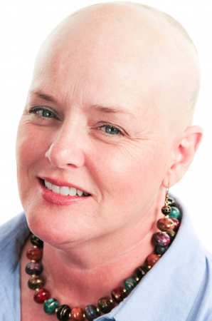 Closeup portrait of beautiful cancer survivor who has lost her hair due to chemotherapy.   Stock Photo