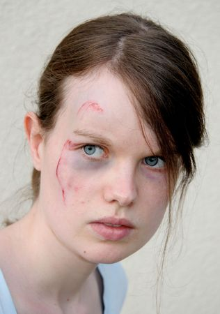 beaten woman: A young woman with a wound on her cheek looking sideways. Victim of domestic violence? Stock Photo