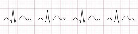 Ligne de battement de coeur. Cardiogramme. Électrocardiogramme. Illustration vectorielle.