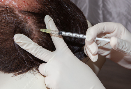 Inyección estimulante crecimiento del cabello Foto de archivo - 58558086
