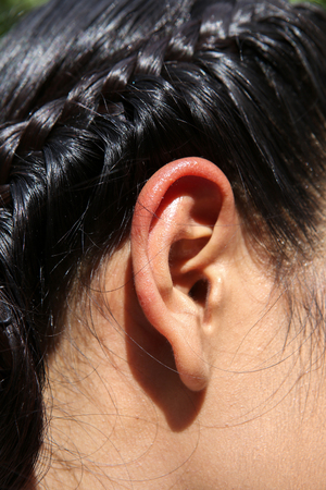ear skin has allergic by chemical agent Banque d'images