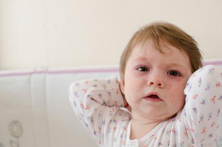 sarpullido: el cuerpo de la niña cubierta de la enfermedad Sexta erupciones en la piel roséola