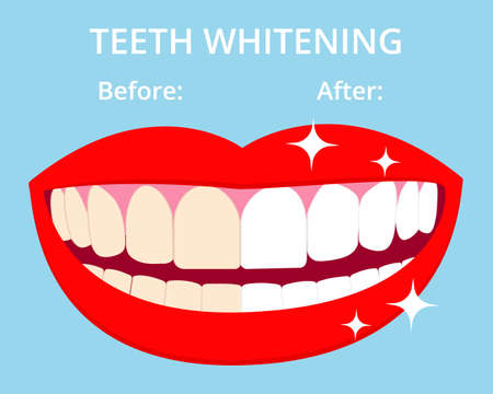 Teeth Whitening concept woth laughed mouse and teeth before and after bleaching. Vector isolated elemnts on blue background.