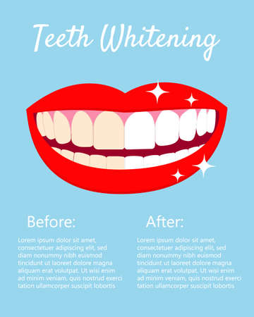Teeth Whitening concept woth laughed mouse and teeth before and after bleaching. With text places. Good for banners, posters. Vector isolated elemnts on blue background