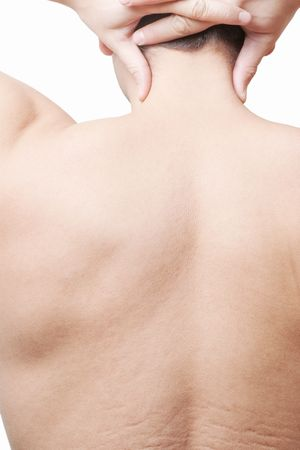 Part of male back with neck and skin stretch marks isolated on white Stock Photo