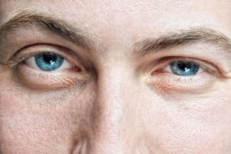 Closeup of young mans blue eyes with problematic skin