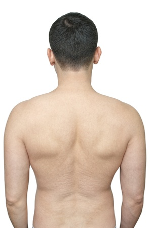 back of a man with skin stretch marks isolated on white