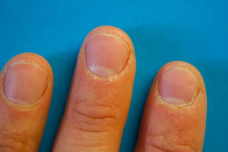 Close up of ugly nails on a hand