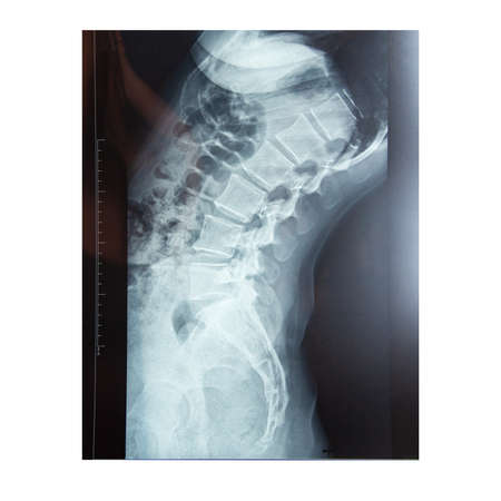 Medical x-ray of the spine body isolated on the white background