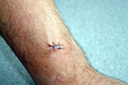stitches in arm photo
