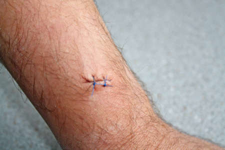 stitches in a mans arm photo