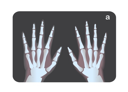 X-ray image of human hands Vector