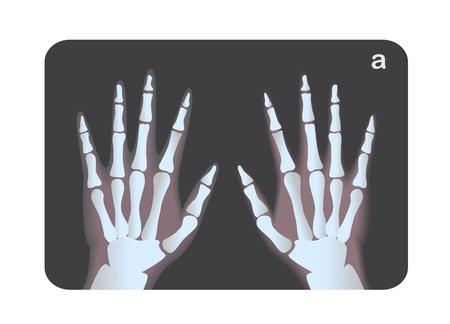 roentgen: X-ray image of human hands