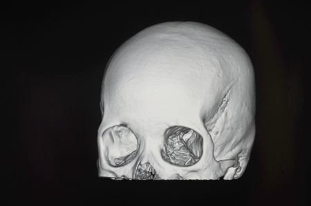 ct: Human skull CT scans