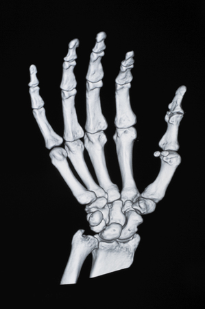 deformity: X-ray of hand